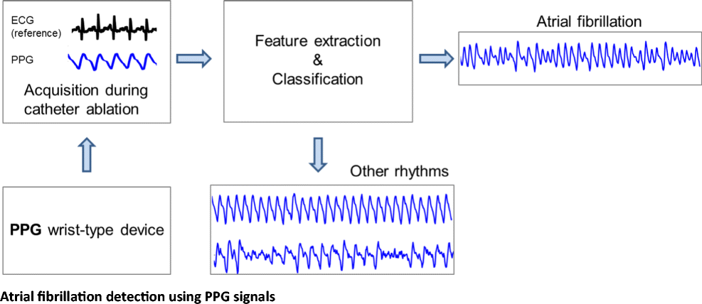 photoplethysmography and its application in clinical physiological measurement